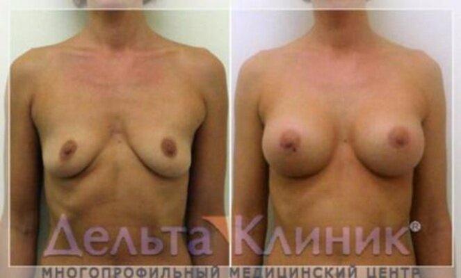 фото галиреи форм и разновидостей женской груди